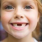 Если у ребенка шатается зуб…