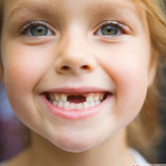 шатается зуб у ребенка